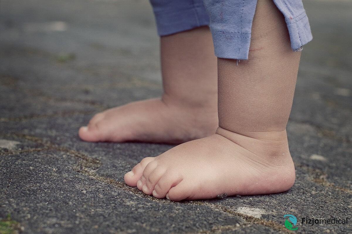 Ćwiczenia na stopę płasko- koślawą